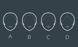 Bói vui: Đường viền chân tóc tiết lộ thế mạnh và điểm yếu của bạn