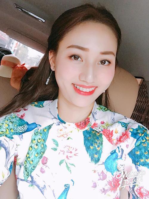 Sau khi đăng quang Á hậu Hoàn vũ Việt Nam 2015, Ngô Trà My lập gia đình và chỉ thỉnh thoảng mới xuất hiện ở các sự kiện. 1 năm gần đây, cô quyết định chỉnh sửa hàm răng bằng cách đeo niềng, giúp hàm răng thêm đều, nụ cười thêm hấp dẫn.