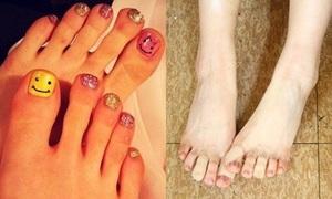Idol Hàn có bàn chân 'xấu xí' này là ai?