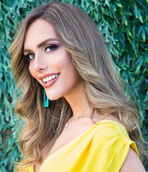 Trên thực tế, Miss Universe chưa từng đưa ra bất kỳ quy định nào cấm người chuyển giới hay các thí sinh phẫu thuật thẩm mỹ tham dự cuộc thi. Cho nên việc tham dự Hoa hậu Hoàn vũ Thế giới của Angela hoàn toàn hợp pháp. Mới đây, theo chuyên trang sắc đẹp Missosology nhận định, người đẹp Tây Ban Nha được xếp hạng 1, trở thành thí sinh tiềm năng nhất cho ngôi vị Hoa hậu Hoàn vũ Thế giới 2018.