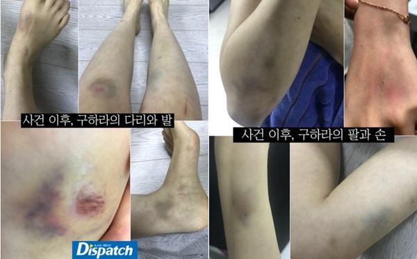 Hình ảnh vết bầm tím trên người Goo Hara sau vụ ẩu đả với bạn trai.