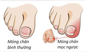 Xử lý móng chân mọc ngược như thế nào?