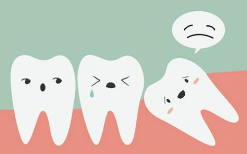 Khổ sở vì mọc răng khôn, nên làm gì?