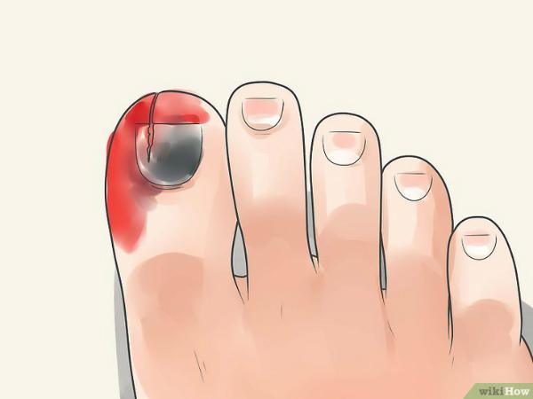 Móng chân bỗng chuyển đen, dấu hiệu bệnh gì?