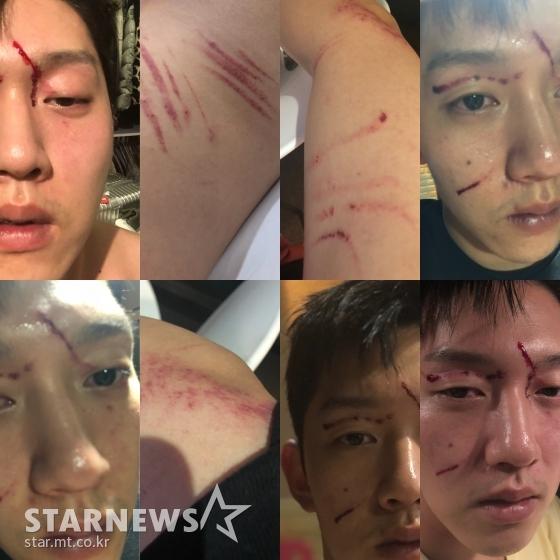 Choi Jong Bum công bố những vết thương mà Goo Hara gây ra cho anh trong vụ xô xát.