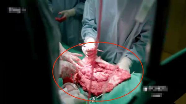 Cảnh phim bác sĩ phẫu thuật trên miếng thịt khiến khán giả buồn cười.