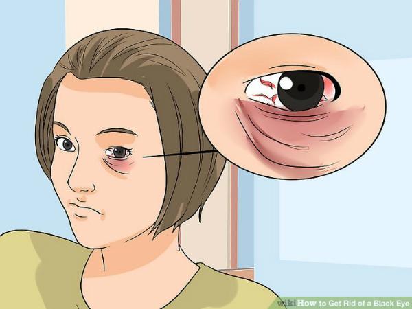 Làm sao để trị bọng mắt gấu trúc thâm quầng