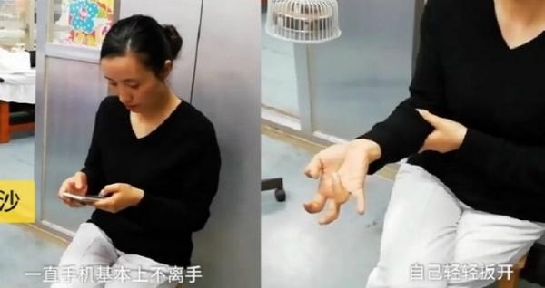 Người phụ nữ với bàn tay bị biến dạng