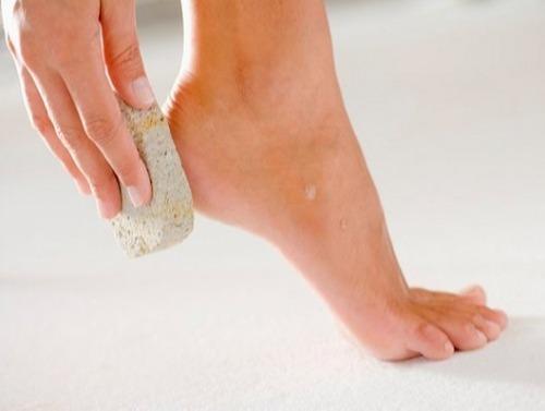 Chữa nứt gót chân cực dễ cho các cô nàng mùa lạnh - 3