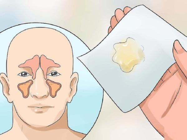 Bị cảm cúm nên xì nước mũi ra hay nuốt vào?