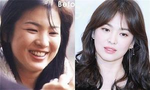 Loạt ảnh kém sắc mà người đẹp Hàn muốn giấu nhẹm