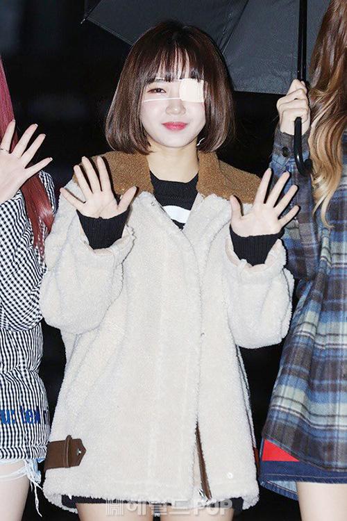 Cô nàng Yoo Jung khiến fan lo lắng vì lại mọc lẹoở mắt.