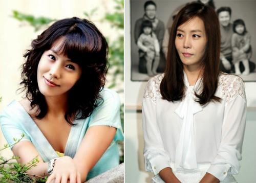 Kim Jung Eun bị nhận xét là đụng dao kéo còn làm mặt xấu đi.