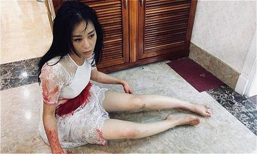 Khán giả lo lắng 'Quỳnh Búp bê' sẽ chết ở tập cuối phim