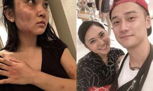 Mỹ nam 9x đánh bạn gái dã man, 'mất tích' 1 tháng mới xin lỗi
