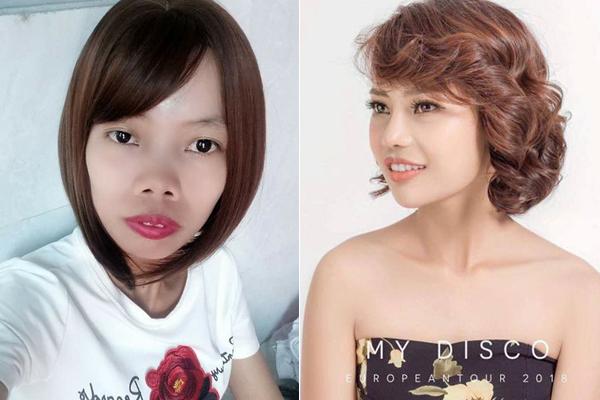 Gương mặt của Duyên thay đổi hoàn toàn sau nhiều ca phẫu thuật xương hàm.
