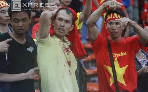 Hình ảnh cổ động viên Việt Nam đổ máu trên sân Malaysia năm 2014. Ảnh: Lâm Thỏa.