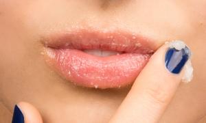 Bí kíp 'thần thánh' giúp bạn gái trị nẻ môi trong ngày đông