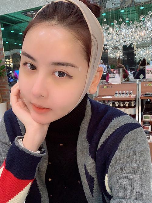 Không chỉ công khai việc chi 300 triệu để sang Hàn Quốc phẫu thuật thẩm mỹ, Hà Lade còn không ngại ghi lại nhật ký dao kéo hàng ngày và chia sẻ rất tích cực với người hâm mộ. Trong lần chỉnh sửa nhan sắc này, cô nàng chọn cách hạ gò má, cấy má baby để lấy lại vẻ tươi trẻ.