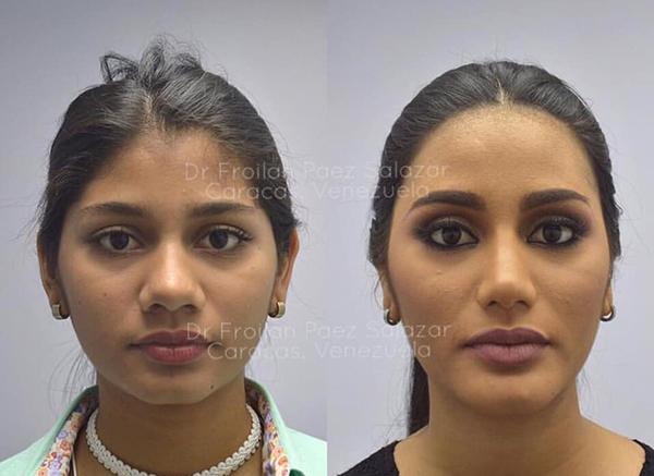 Mới đây, bác sĩ thẩm mỹ của Sthefany đã công khai hình ảnh của tân Á hậu trước và sau khi phẫu thuật thẩm mỹ. Đến từ cường quốc sắc đẹp Venezuela, Sthefany được định hướng con đường nhan sắc từ rất sớm. Năm 17 tuổi, cô nàng đã trải qua việc nâng mũi, làm trán, độn cằm.
