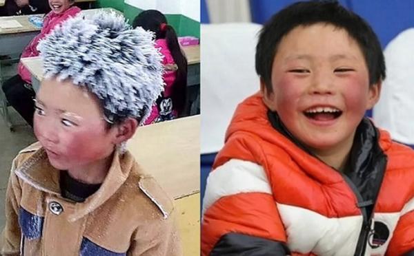 Cậu bé băng tuyết sau một năm. Ảnh: South China Morning Post