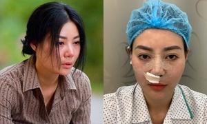 'Lan Cave' Thanh Hương sửa lại mũi