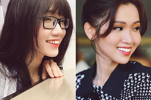 Trước đây, cô gái Sài thành lộ rõ nhược điểm răng thô, khấp khểnh ở góc nghiêng. Việc sửa răng giúp Nhật Hà tự tin nở nụ cười, đồng thời vẻ đẹp kiểu hot girl cũng trở nên sắc sảo, quyến rũ hơn.