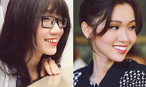 Hoa hậu chuyển giới Việt lên đời nhan sắc nhờ 'đập răng làm lại'