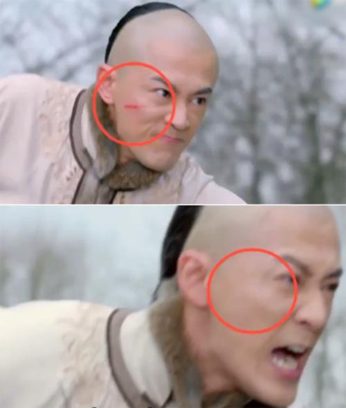 Trong phim Độc bộ thiên hạ, nhân vật nam bị thương trên mặt khi đang cưỡi ngựa. Nhưng chạy một lúc, vết thương tự nhiên biến mất.
