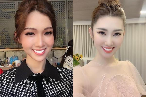 Nhật Hà bọc răng sứ trắng, đều thay thế cho hàm răng lệch trước đây làm khuôn mặt cô thay đổi và giống Thúy Ngân hơn.
