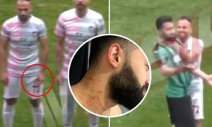 Cầu thủ dùng hung khí rạch cổ đối phương ngay trên sân cỏ