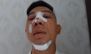 Lương Bằng Quang phẫu thuật thẩm mỹ