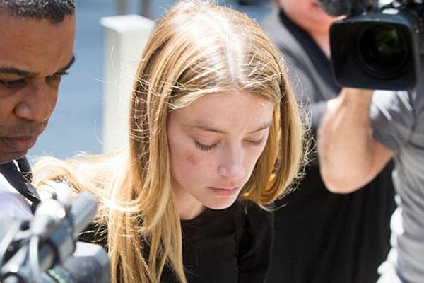 Gương mặt bị thương của Amber Heard với lời tố bị chồng bạo hành.