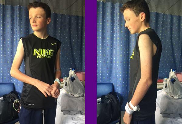 Hình ảnh Liam trong thời gian điều trị.