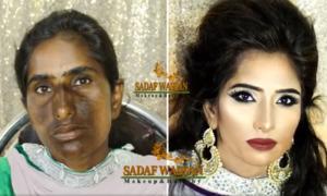 Cô gái có làn da loang lổ hóa 'nữ hoàng' nhờ make-up