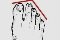Trắc nghiệm: Dự đoán mức độ giàu có của bạn qua tướng bàn chân - 1