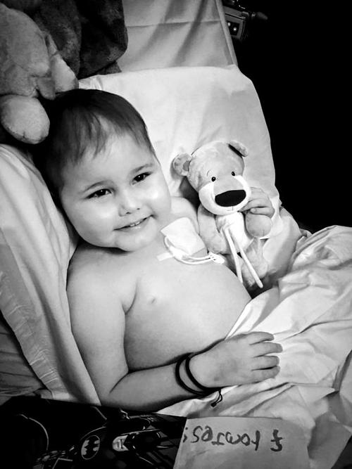 Oscar Saxelby-Lee bị phù nề do ảnh hưởng từ quá trình điều trị song bé rất lạc quan.