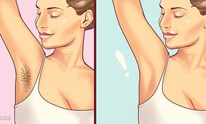 Mẹo hay giúp 'diệt' vi-ô-lông vùng cánh tay hiệu quả