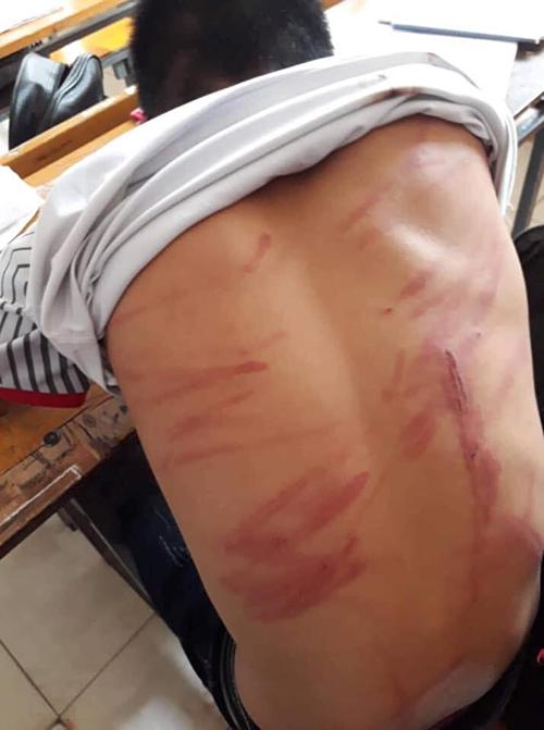 Những vết thương trong một trận đòn của Linh. Nhiều người cho rằng đây là