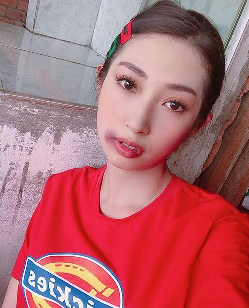 Khổng Tú Quỳnh bị đánh bầm tím môi trong phim mới.
