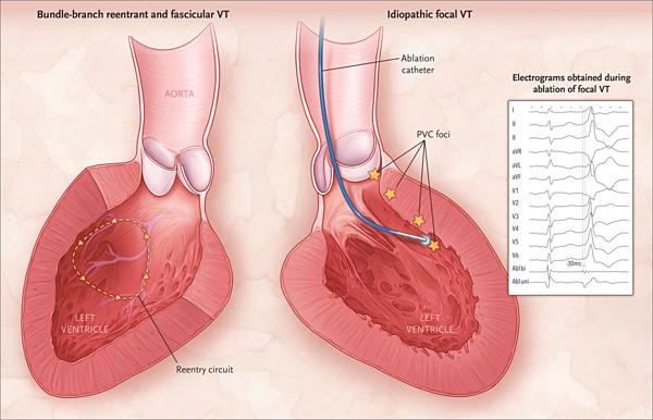 Khử rung tim là phương pháp điều trị rối loạn nhịp tim đe dọa tính mạng.