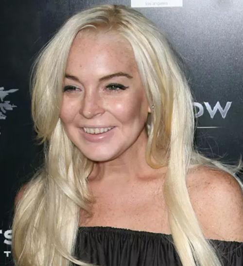 Nỗ lực phẫu thuật thẩm mỹ để cứu vớt nhan sắc, Lindsay Lohan càng khiến vẻ ngoài trông khó coi hơn. Ở tuổi 33, cô đã phải đối mặt với nhiều vấn đề như đầu hói, da nhăn, bị đánh giá là già hơn 10 năm so với tuổi thật.