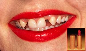 Quảng cáo son Gucci gây khó hiểu với người mẫu răng thưa, ố vàng