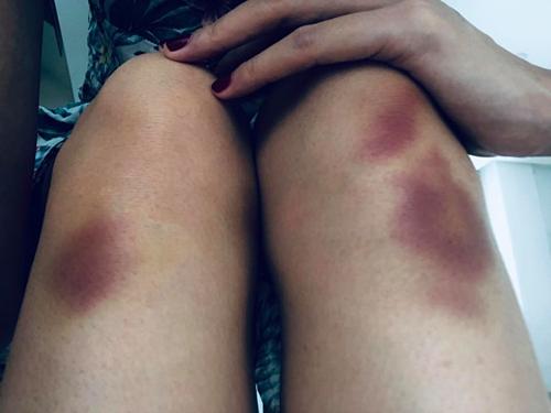 Đôi chân Thủy Tiên bị bầm tím.