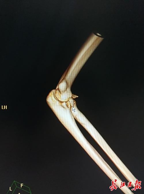 Bức chụp X-quang cánh tay gãy của thanh niên Trung Quốc.