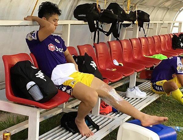 Trung vệ số 21 được băng bó, chườm đá, ngồi trên băng ghế với khuôn mặt buồn bã. Ảnh: Next Sport