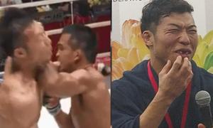 Võ sĩ Nhật Bản bị đối thủ đấm rơi răng cửa