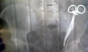 Bệnh nhân bị bỏ quên kẹp phẫu thuật trong bụng 23 năm