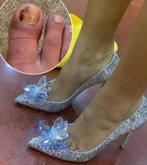 Cô còn đi đôi giày Lọ Lem của Jimmy Choo giá 5.000 USD rất tông xuyệt tông. Để diện được thiết kế gót nhọn này, HHen Niê phải cố gắng chịu đau đầu mũi chân vì ngón chân của cô đang bị sưng tấy, mưng mủ nặng. Người đẹp tiết lộ cô chỉ có thể đi lại, chụp hình trong 2 tiếng, sau đó phải nhờ ê kíp thay đôi giày khác thoải mái hơn.