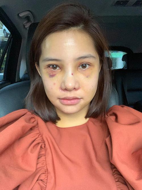 7 ngày sau khi đập mặt đi xây lại, Lưu Đê Ly có thể hồi phục sức khỏe và trở về Việt Nam. Gương mặt của cô lúc này vẫn còn sưng, bầm tím tuy nhiên không bị đau đớn.